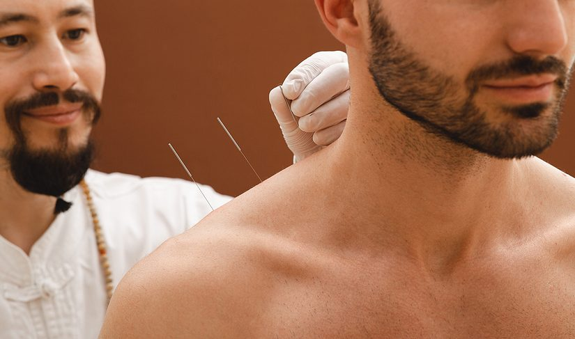 Man getting acupuncture for shoulder pain