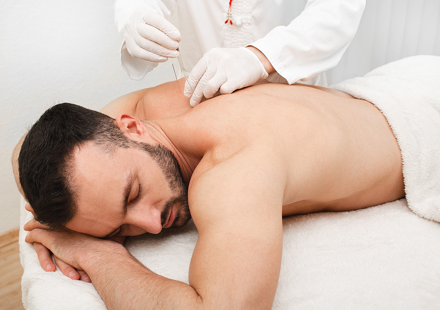 Reflexologist doing acupuncture to treat male patient.